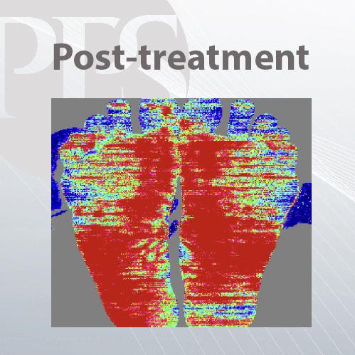 post-treatment anodyne
